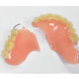 Частичный съемный акриловый армированный протез