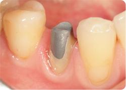 Культевая металлическая вкладка зуба
