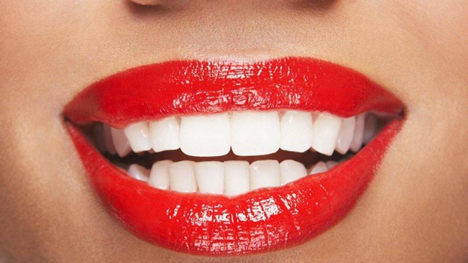 Профессиональная полировка зубов