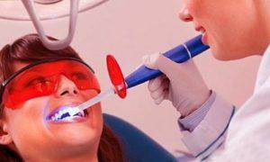 чистка зубов и отбеливание