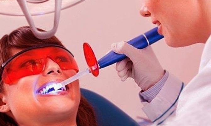 Доступная чистка зубов от камня и отбеливание Одесса