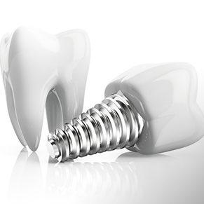 Зубной имплант с установкой