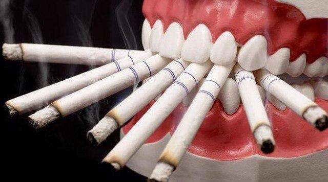 Вредные привычки: как курение влияет на зубы