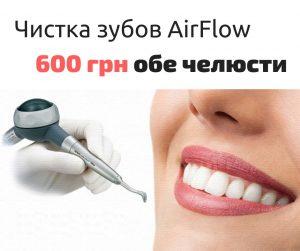 Ультразвуковая чистка зубов, Air Flow