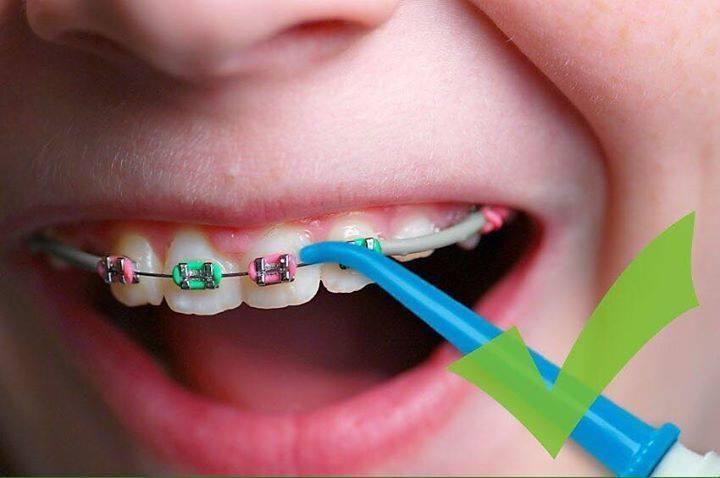 Брекеты портят зубы