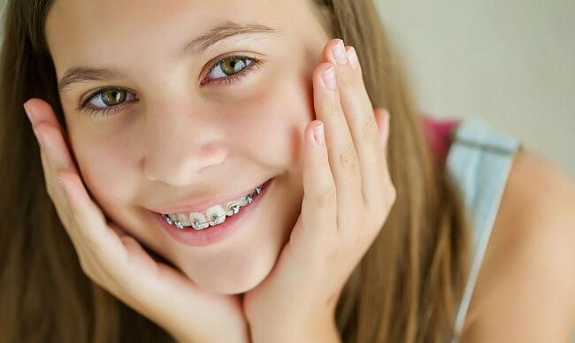 Почему стоит выравнивать зубы с помощью брекетов