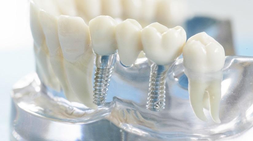 Как правильно ухаживать за зубами после имплантации