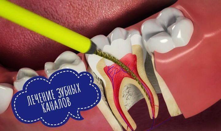 Зубные каналы: зачем лечить и перелечивать