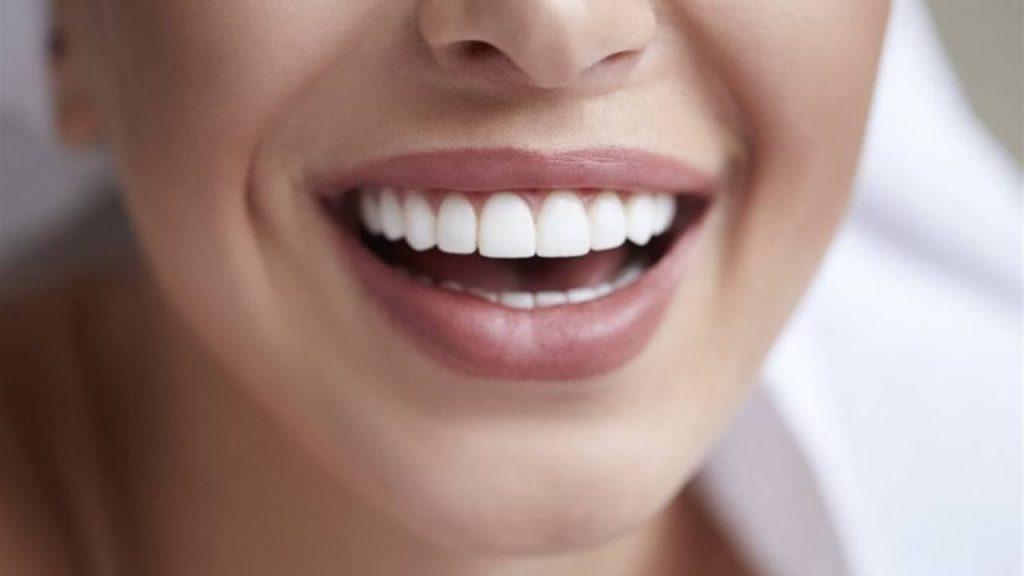 с помощью пасты можно отбелить зубы за несколько дней