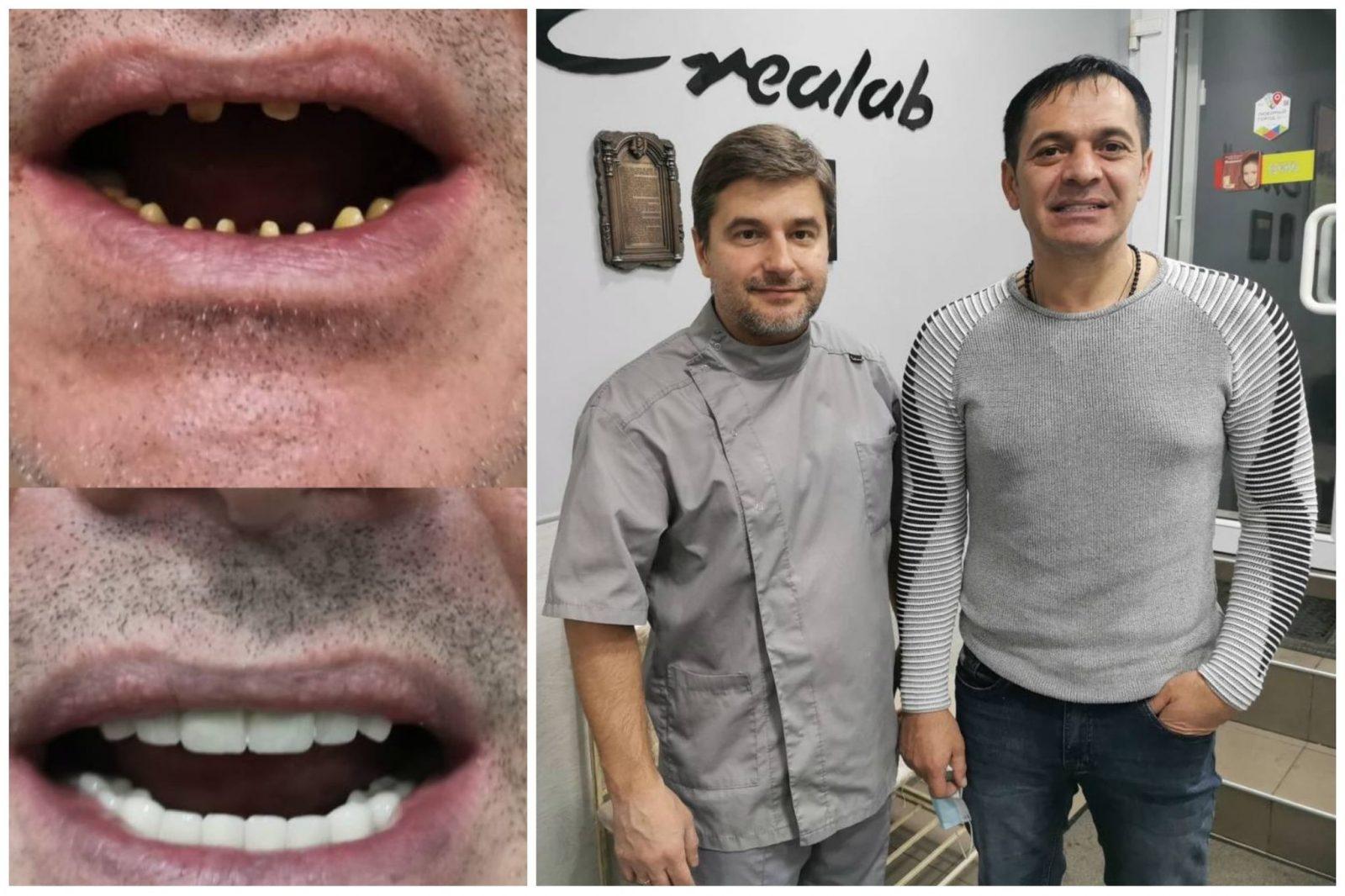 металлокерамика-на-жевательные-зубы