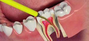 Профессиональное удаление нерва из зуба