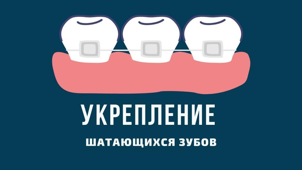 укрепление шатающихся зубов