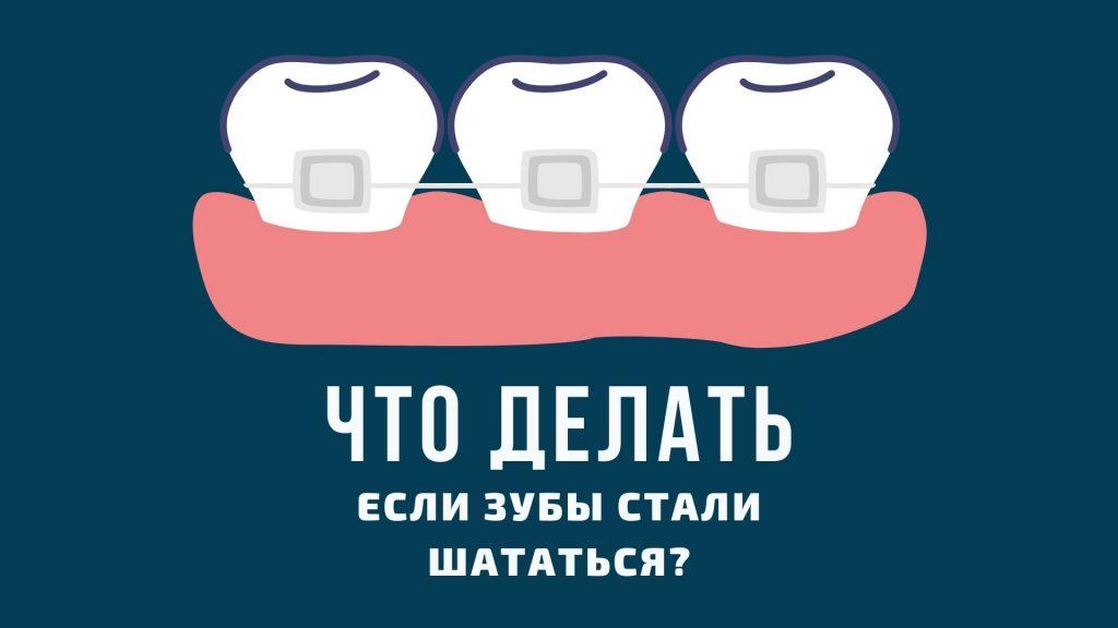 Что делать, если зубы стали шататься?