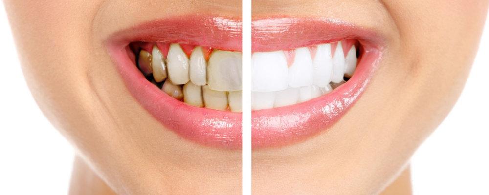почему чернеют зубы