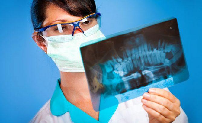 Хирургия зубов