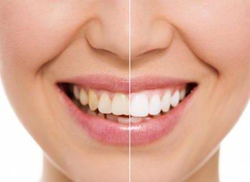 Эстетическая стоматология - отбеливание зубов в Одессе